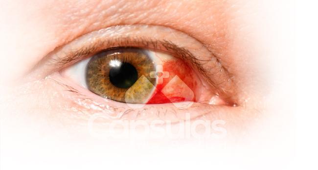 Cápsula-de-Salud-Derrame-Subconjuntival